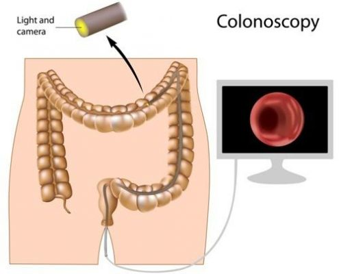 Colonoscopy louisville ky