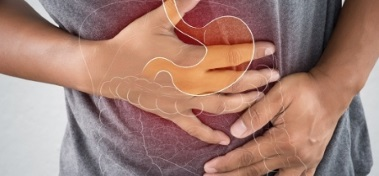 Irritable Bowel Syndrome - Signs and Symptoms