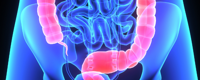 Colon cancer screening tests